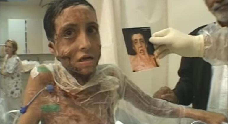 Este hombre se llevó a esta niña de 9 años a casa después de su operación... Un año después sus padres no podían creer los resultados